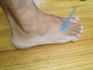 foot pain after walking